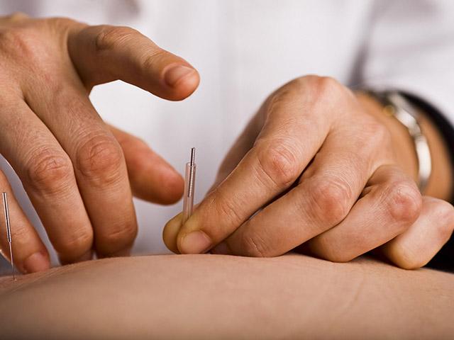 Dry-needling-_HR